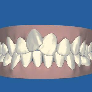 歯の移動をご確認いただけます